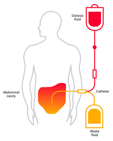 Principle of Continuous Ambulatory Peritoneal Dialysis (CAPD)